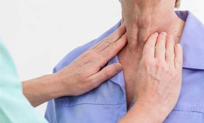 Увеличение объема щитовидной железы может быть признаком диффузного токсического зоба