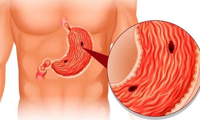 Кеналог может спровоцировать развитие язвенных заболеваний органов ЖКТ