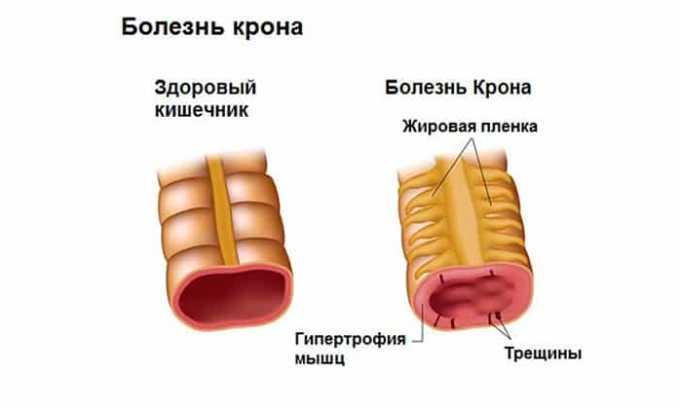 Препарат требует осторожного применения при заболевании Крона