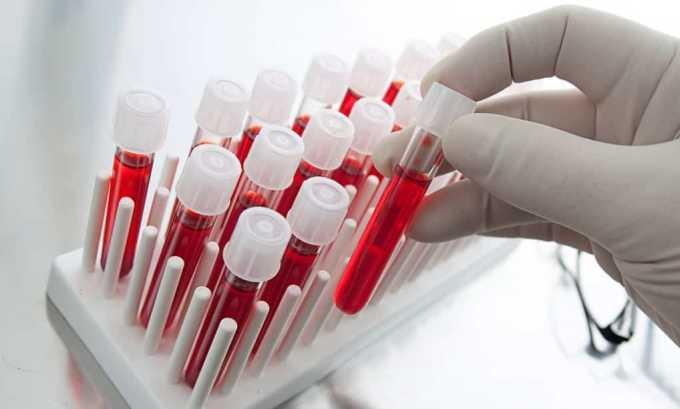 По результатам анализа крови на гормоны щитовидной железы (ТТГ, Т3 и Т4) доктор может судить о состоянии органа во время беременности