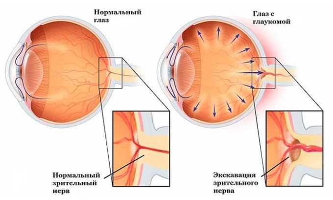 Кеналог запрещено применять при глаукоме