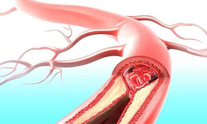 Окклюзионная болезнь периферических артерий считается противопоказанием к применению мази