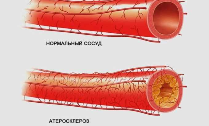 L-тироксин 50 противопоказан при атеросклерозе