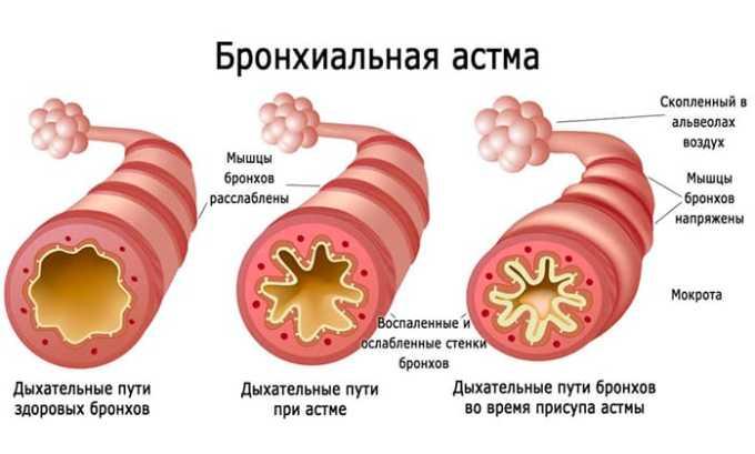 При длительном приеме или использовании препарата на больших участках тела может появиться бронхиальная астма