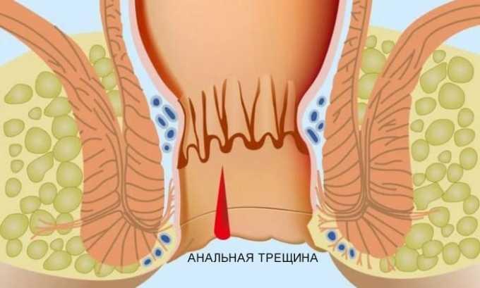 Препарат от трещин в анальном отверстии действует мягко и эффективно