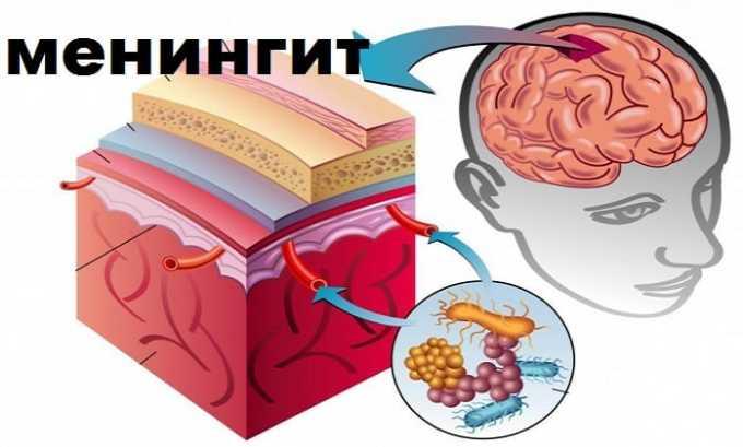 Препарат Метипред назначают при менингите