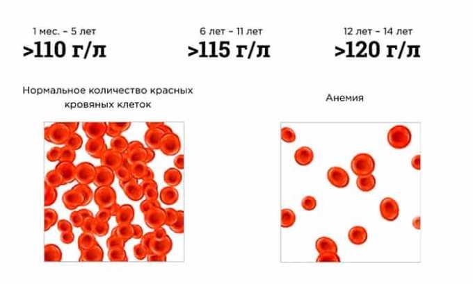 Если страдает система кроветворения, больной после приема Нексавара сталкивается с анемией
