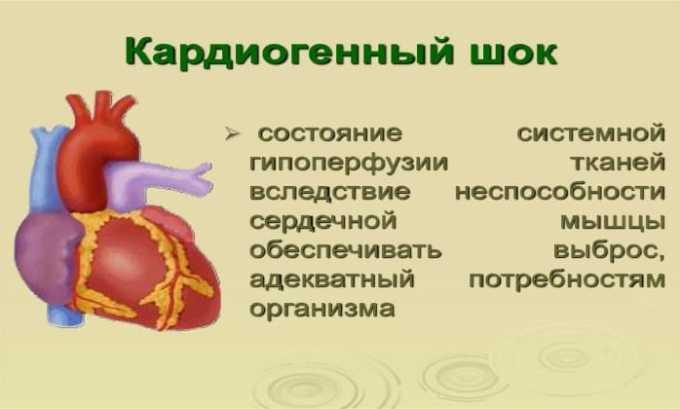 Строго запрещено назначать препарат людям с кардиогенным шоком