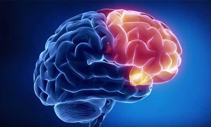 Требуется терапия Медопредом при отеке мозга