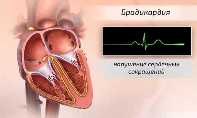 Брадикардия является наиболее частым побочным действием препарата