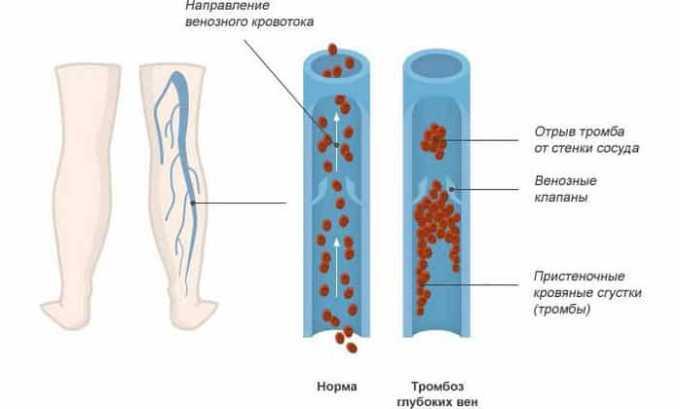 Вобензим используется для лечения тромбофлебита и профилактики флебитов