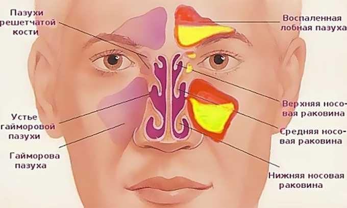 Показания для принятия лекарственного средства воспалительные процессы в горле, ухе или носу (например, гайморит)