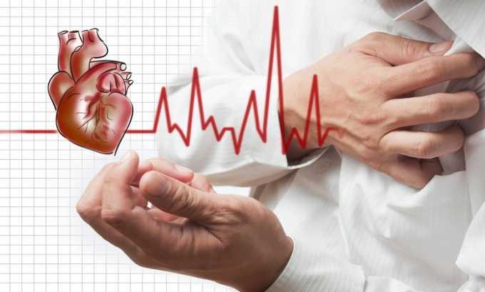 При инфаркте миокарда принимают Левокарнил 500