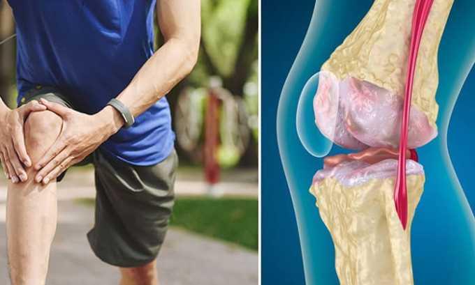 При воспаленных тканях и суставах у людей с травмами и ревматическими патологиями рекомендуют применять Вольтарен гель