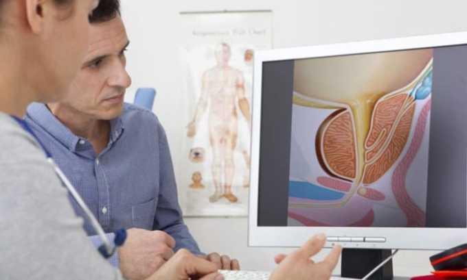 Свечи диклоберл инструкция по применению в гинекологии