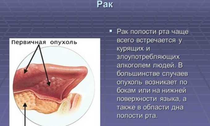 Противоопухолевый антибиотик назначается в таких случаях, как плоскоклеточный рак ротовой полости