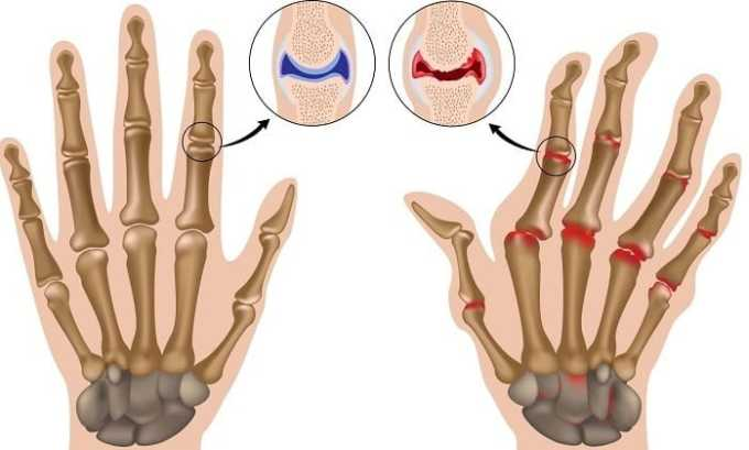 Кеналог 40 используют при артритакх разного генеза