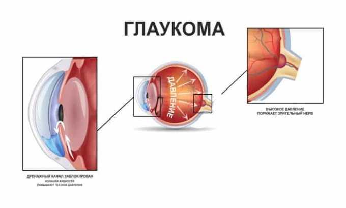 При наличии глаукомы принимать лекарство нельзя