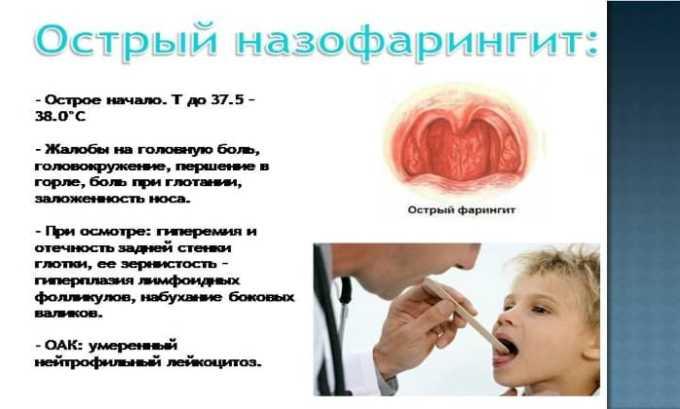 Комбинирование лекарственных средств часто применяется при устранении острого назофарингита