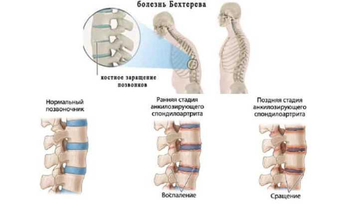 Диклоберл показан при воспалительные и дегенеративные патологии костно-хрящевых тканей