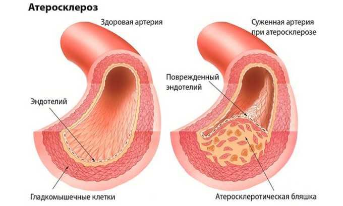 Одновременный прием рекомендуется при атеросклерозе