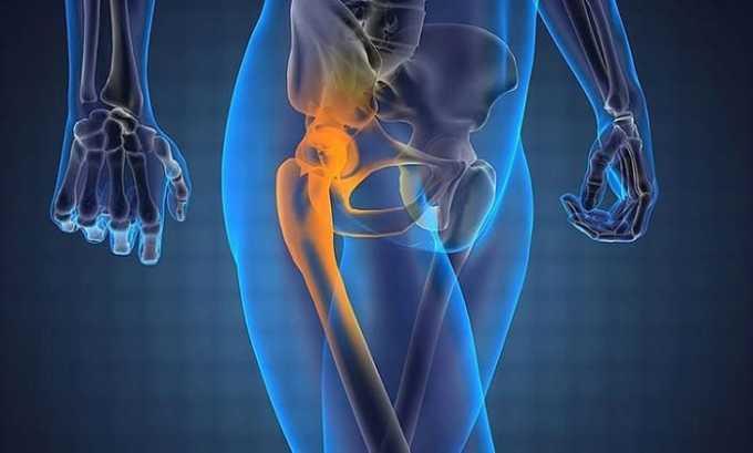 Лекарственный препарат применяется местно при заболеваниях суставов и околосуставной ткани