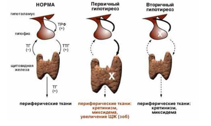 От приема препарата может развиться побочный эффект в виде гипофункции щитовидной железы