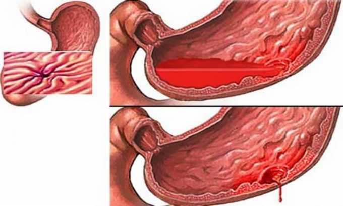При развитии кровотечений в ЖКТ препарат следует немедленно отменить препарат