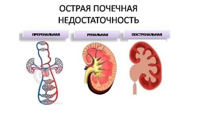 При заболеваниях почек, протекающих в тяжелой форме, Гидрокортизон не назначается