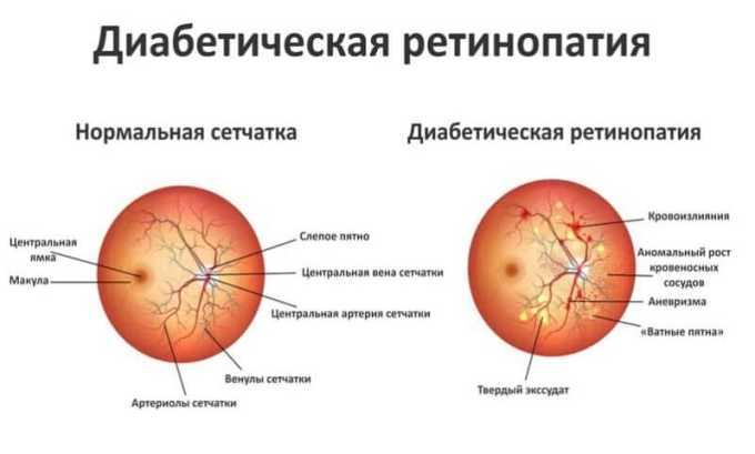Диабетическая ретинопатия лечится Озурексом