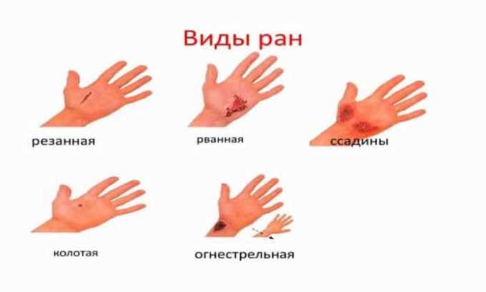 Препарат используют для лечения ран