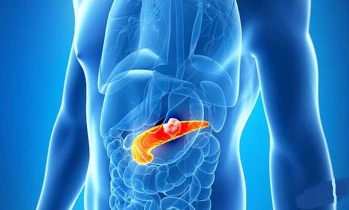 При передозировке мазью возможно воспаление поджелудочной железы