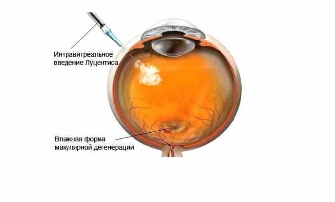 Озурекс показан для лечения влажной формы возрастной макулярной дегенерации (ВМД)