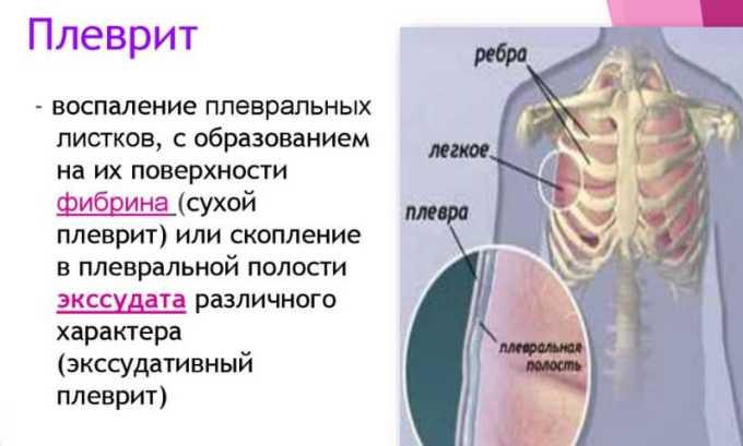 Противоопухолевый антибиотик назначается в таких случаях, как Плеврит злокачественного характера