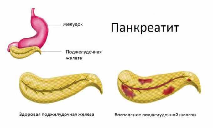 Препарат Гидрокортизон 1 может вызвать обострение панкреатита
