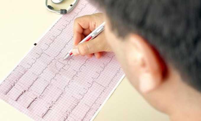 ЭКГ может выявить нарушение ритма сердца и другие аномалии