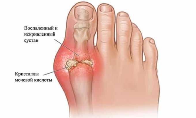 Вольтарен назначают при подагрическом артрите