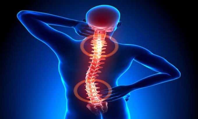 Показаниями к приему Найз является остеохондроз в разных формах