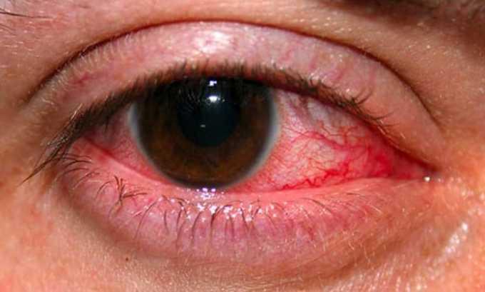 Лекарственное вещество показано при симпатической офтальмии