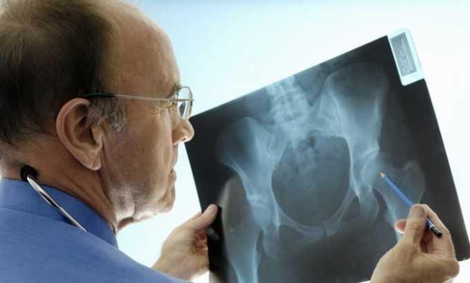 Требуется проводить рентгенологическое обследование опорно-двигательного аппарата