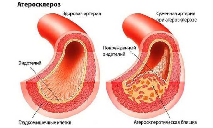 Среди показаний к применению Вобензима является атеросклероз