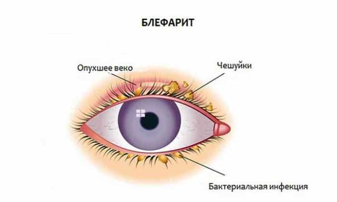 Назначают препарат для лечения блефарита