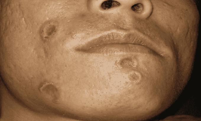 Мазь имеет как противопоказание признаки сифилиса, проявляющиеся на кожном покрове
