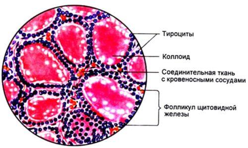 Если тироциты начинают активно делиться, то образуется узел на железе