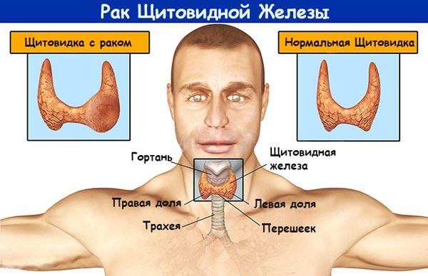 щитовидная железа и уровень холестерина
