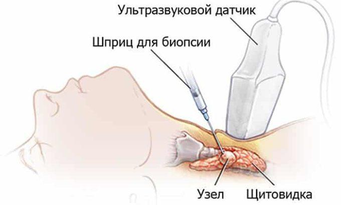 Иногда больной может самостоятельно заметить некоторую припухлость в районе шеи. Если это произошло, то в срочном порядке нужно сделать УЗИ и биопсию