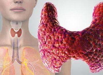 Особенности диеты при аутоиммунном тиреоидите