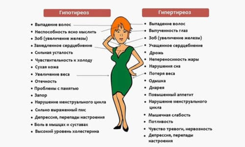 Клиника гипотиреоза характеризуется симптомами болезни, поразившей щитовидную железу, вызвавшей дисфункцию и появление характерных признаков гипотиреоза