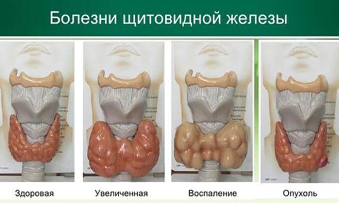 Воспаленная железа доставляет человеку много неприятностей и достигает веса в несколько килограмм. Помочь больному с увеличением щитовидной железы необходимо немедленно