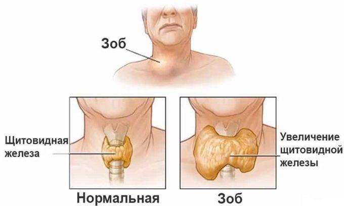 Расположение и форма эндомического зоб